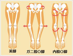2O脚の種類